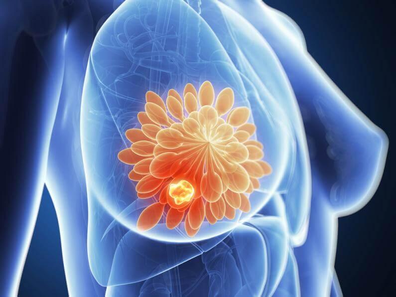 """NAJAVA STRUČNOG SASTANKA: """"Radiološki imidžing patoloških promjena  dojke"""""""